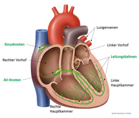 Lukaskrankenhaus Neuss - Medizinische Klinik I - Herzrhythmusstörungen