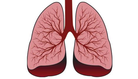 Lungenarzt neuss