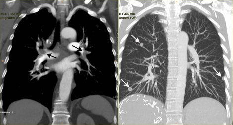 Thorax-CT-Web